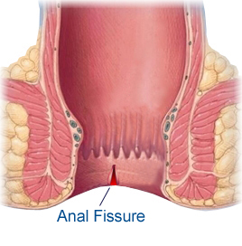 And stool fissures size Anal
